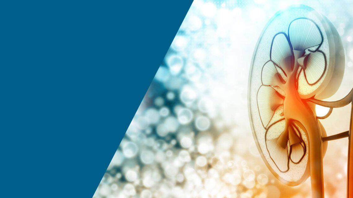 Diálise peritoneal: o que você precisa saber